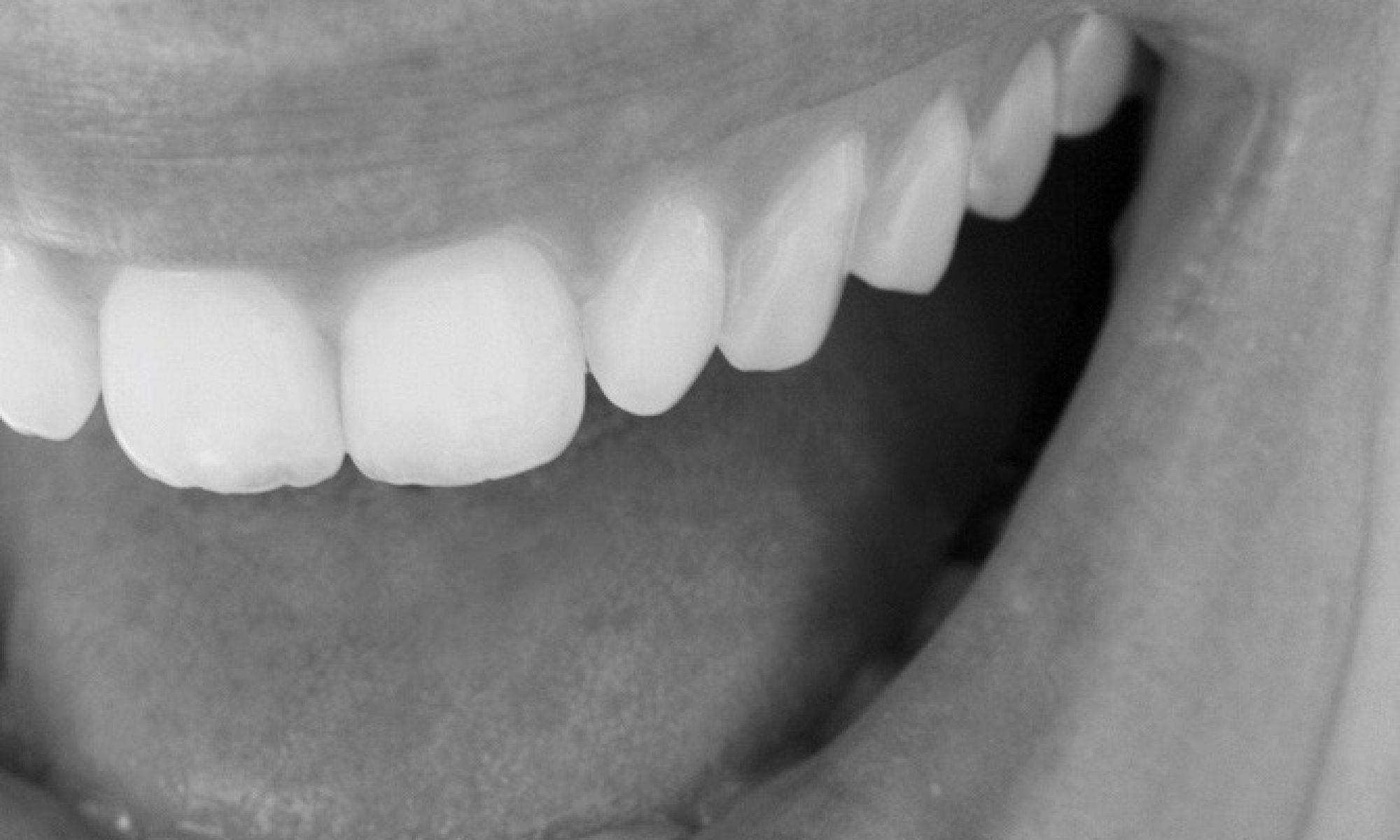 pfeil.smile